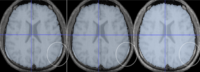 ANTSevaluation_NeuroImage2010.png
